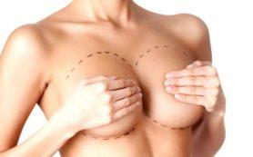 Что нужно знать об увеличении груди?