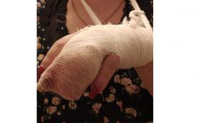 В Смоленске ротвейлер оторвал женщине палец